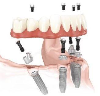 alt sabit implant
